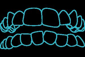Crooked-teeth-braces-Invisalign-London
