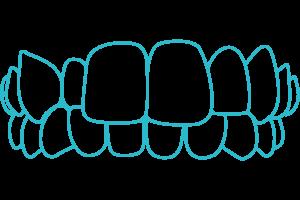Crossbite-braces-Invisalign-London