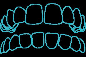 Gapped-teeth-braces-Invisalign-London