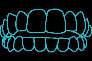 Open-bite-braces-Invisalign-London
