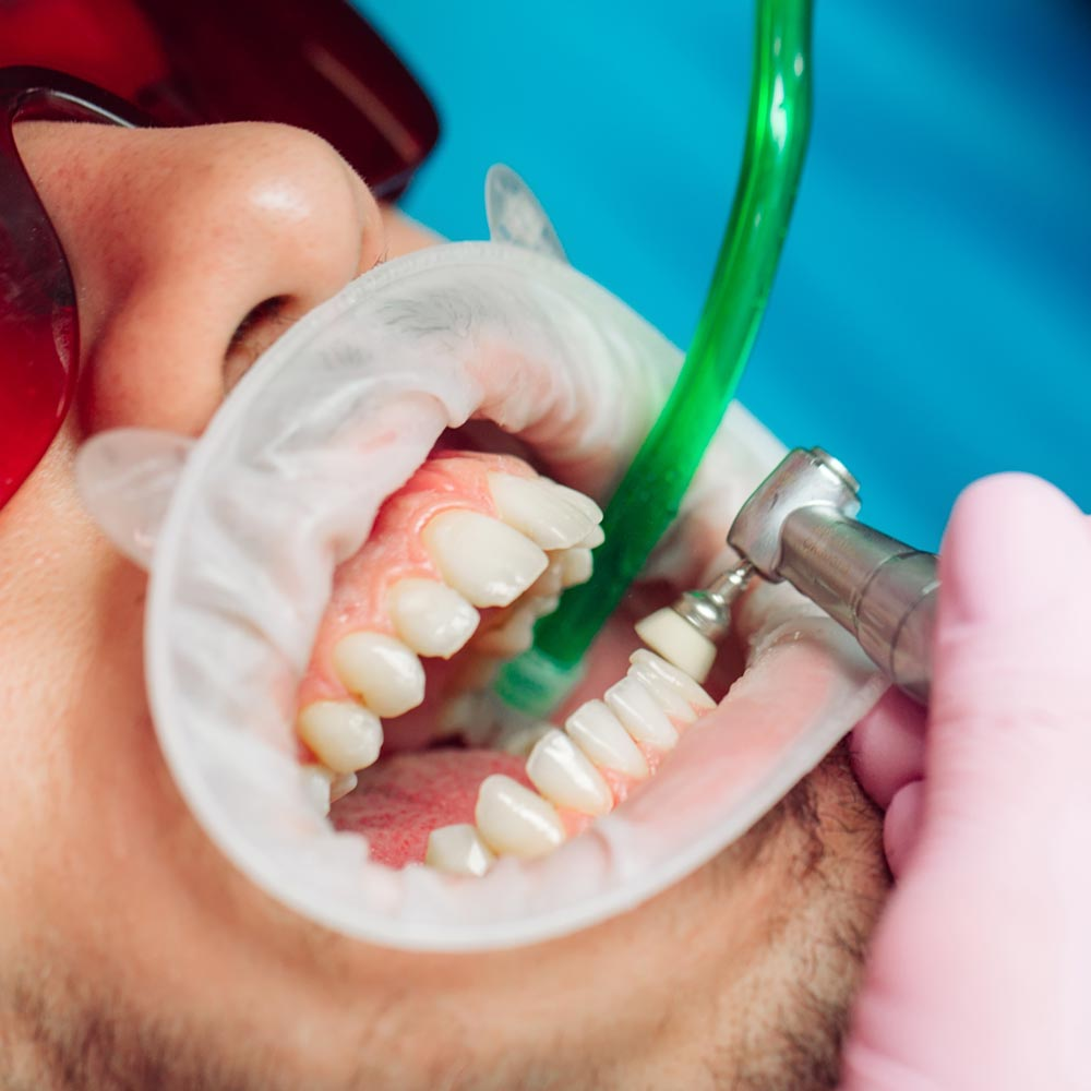 Dental hygiene, teeth cleaning