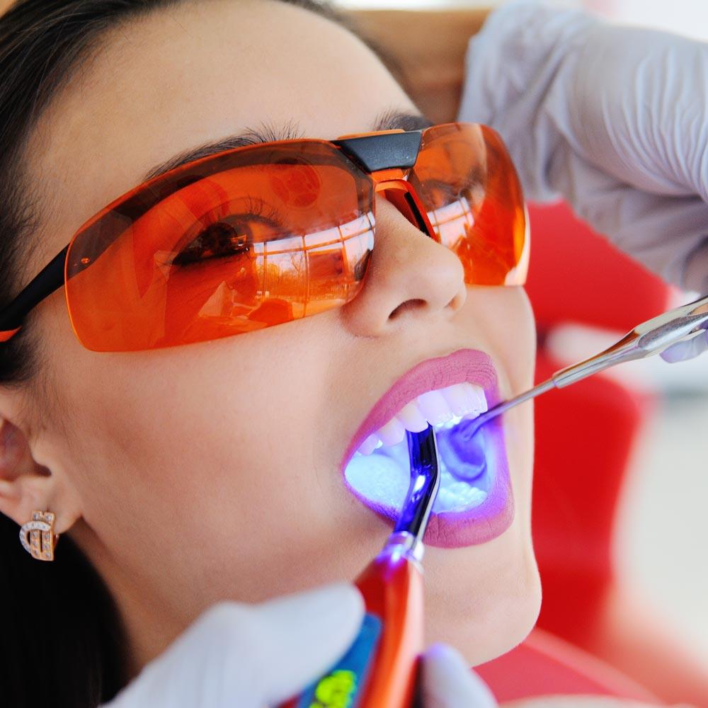 Tooth Filling, Kings Cross Dentist