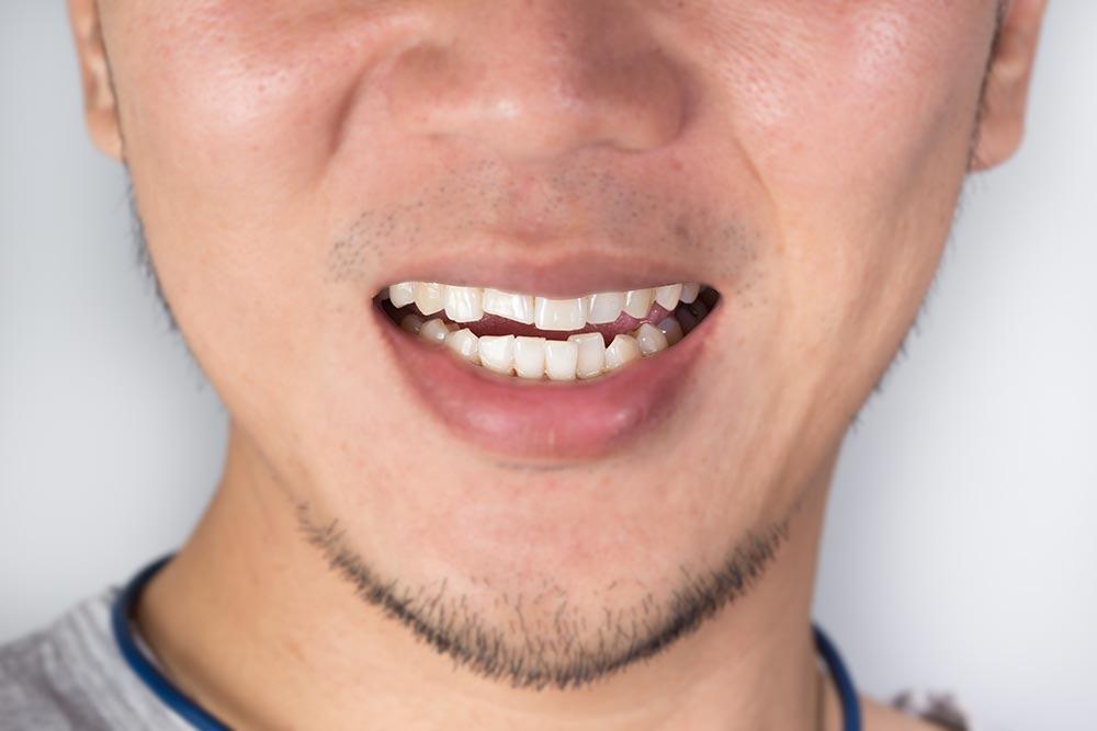 Emergency Broken tooth treatment near Kings Cross London
