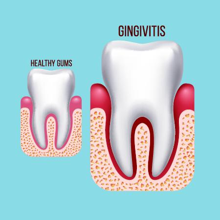 Gingivitis Treatment London