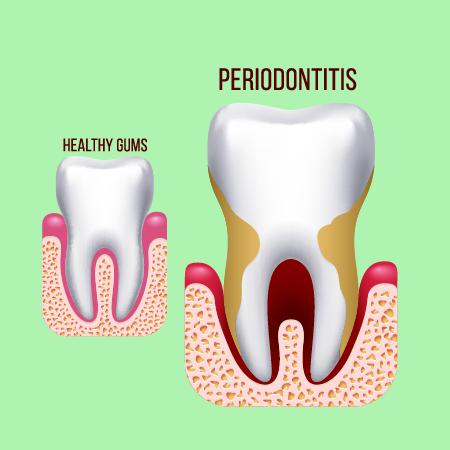 Periodontitis Treatment London