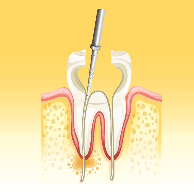 Root Canal Treatment Explained