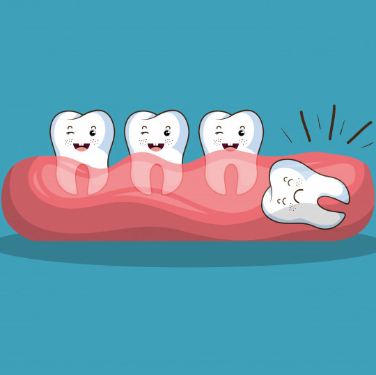 Complex Tooth Removal