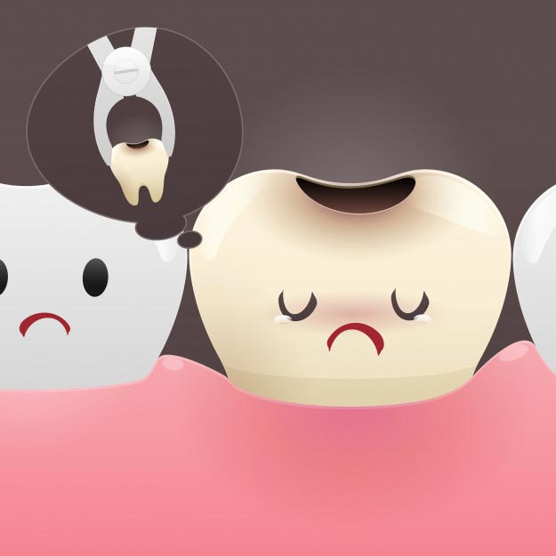 When Is Tooth Extraction Needed