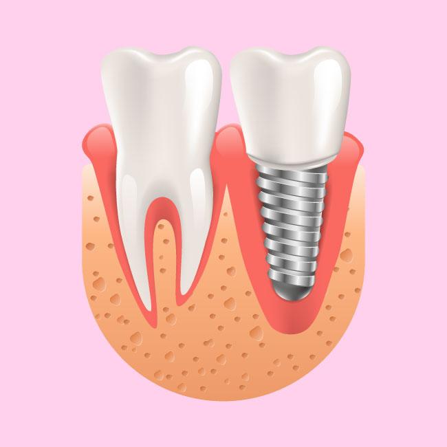 Emergency Dentistry - Dental Implant Emergency