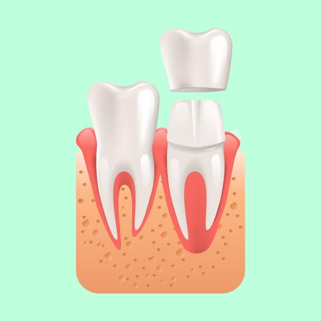 Emergency Dentistry - Dental Crown