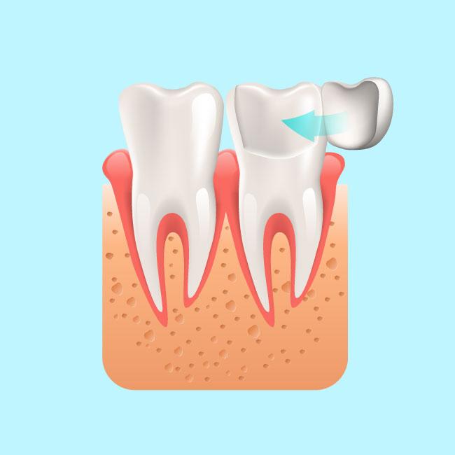 Emergency Dentistry - Dental Veneer