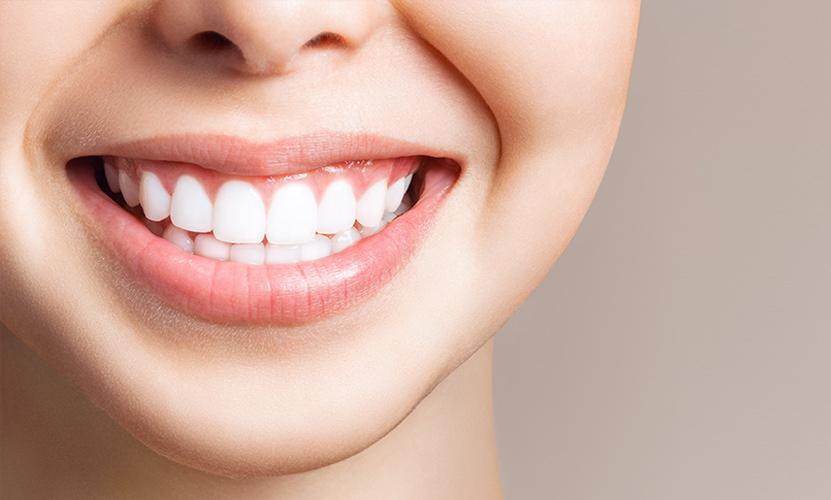 Emergency dental veneers London