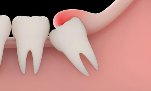 Emergency Impacted Tooth Treatment London