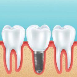 Loose dental implant crown