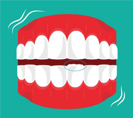 Teeth Contouring