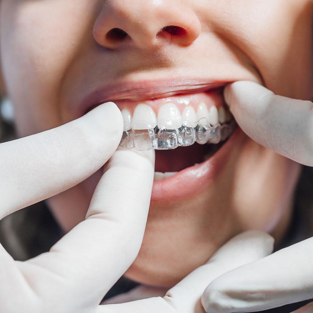 Invisalign Braces Over Teeth