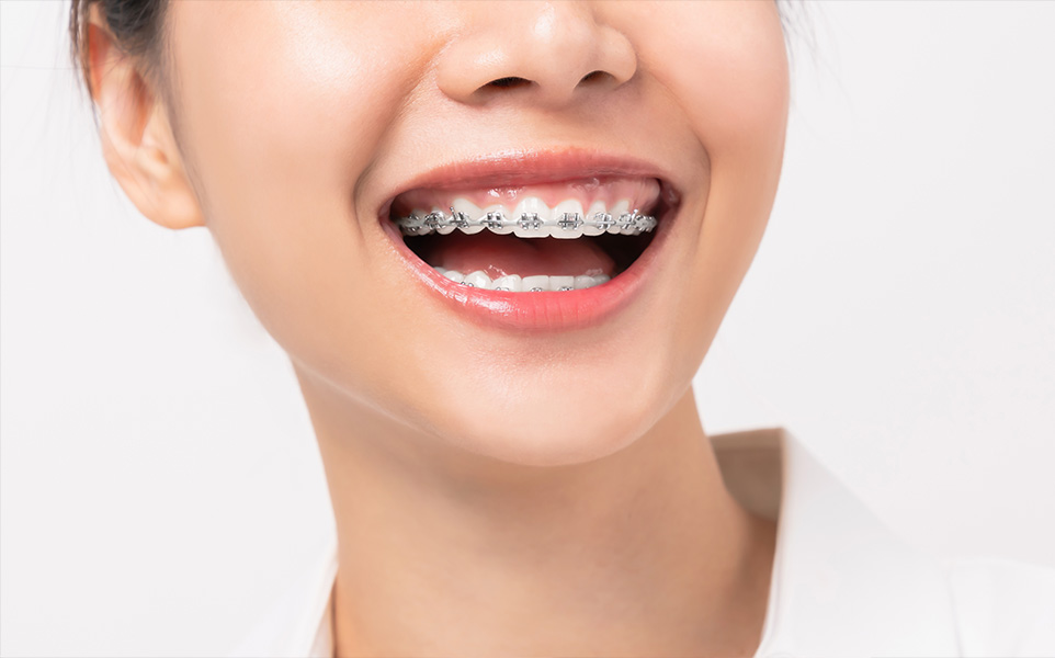 Traditional metal braces header image