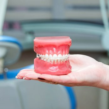 Who Are Ceramic Braces For