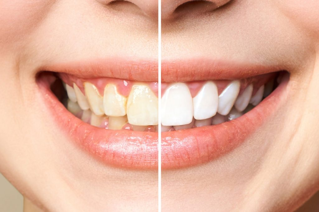 How white can teeth become after whitening