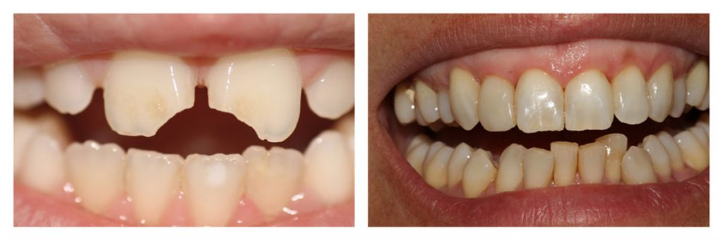 The right use of teeth contouring